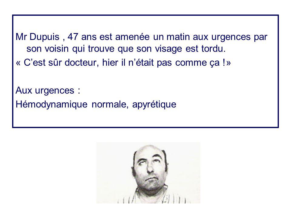 Mr Dupuis , 47 ans est amenée un matin aux urgences par son voisin qui trouve que son visage est tordu.