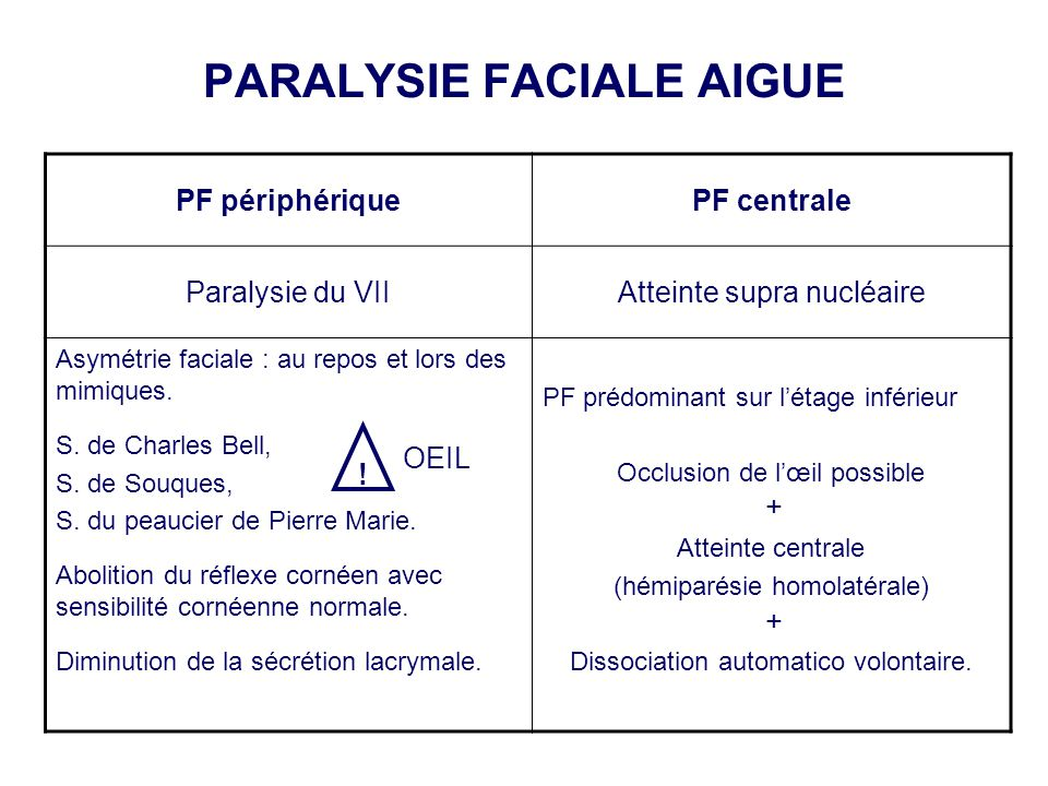 PARALYSIE FACIALE AIGUE