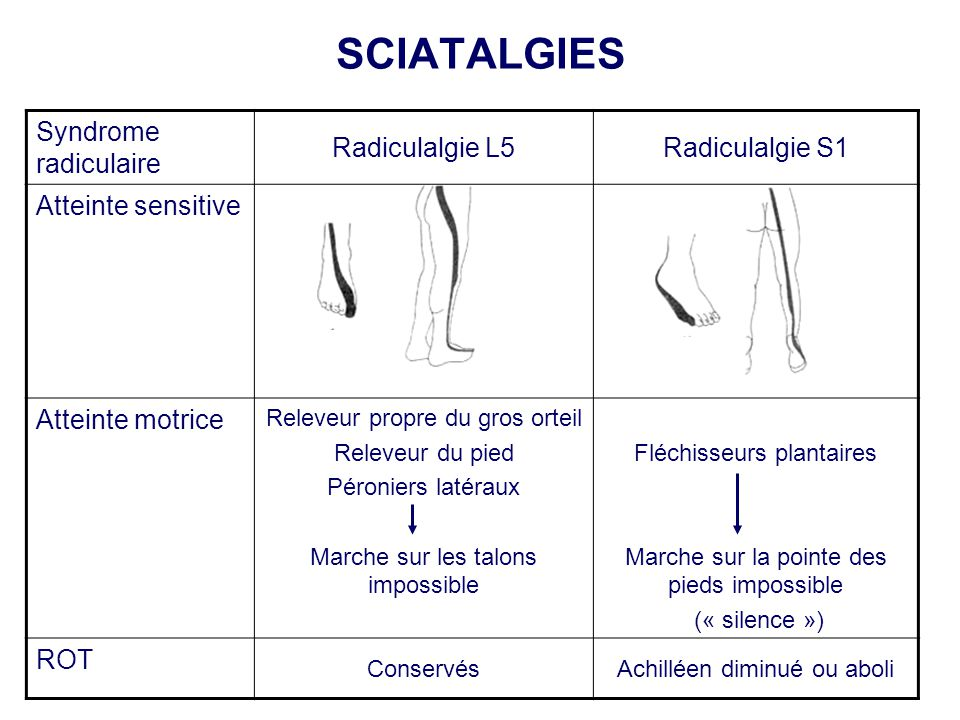 SCIATALGIES Syndrome radiculaire Radiculalgie L5 Radiculalgie S1