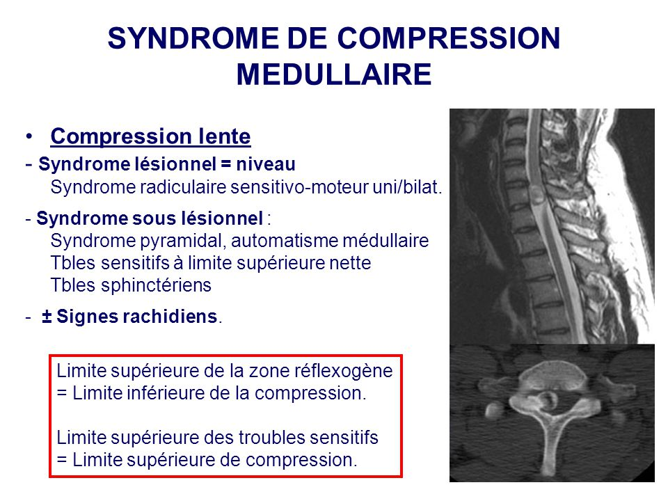 SYNDROME DE COMPRESSION MEDULLAIRE