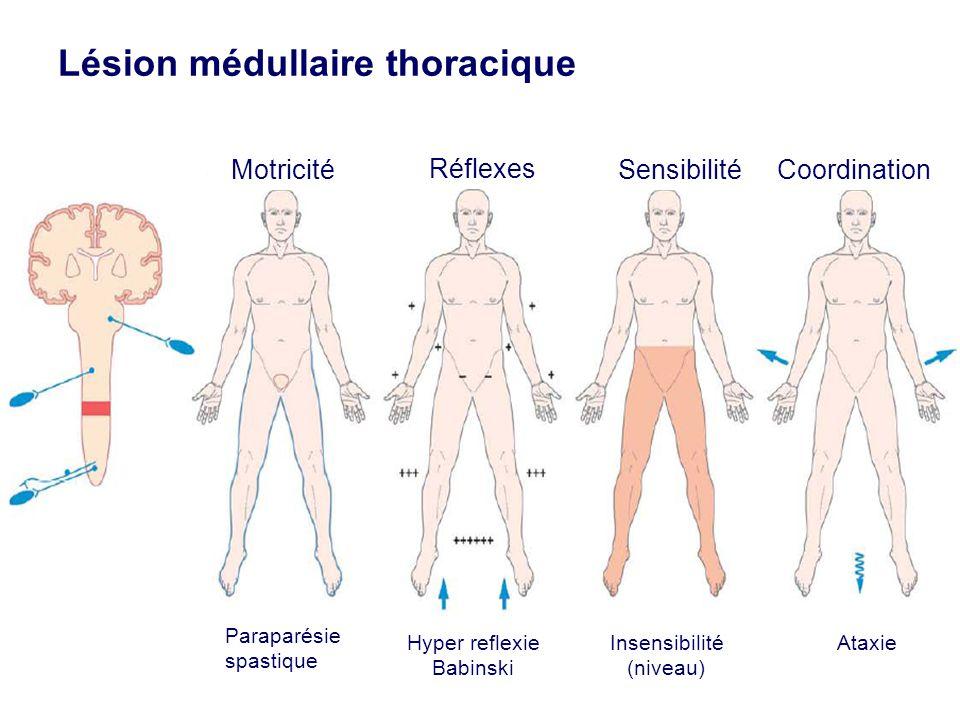 Lésion médullaire thoracique