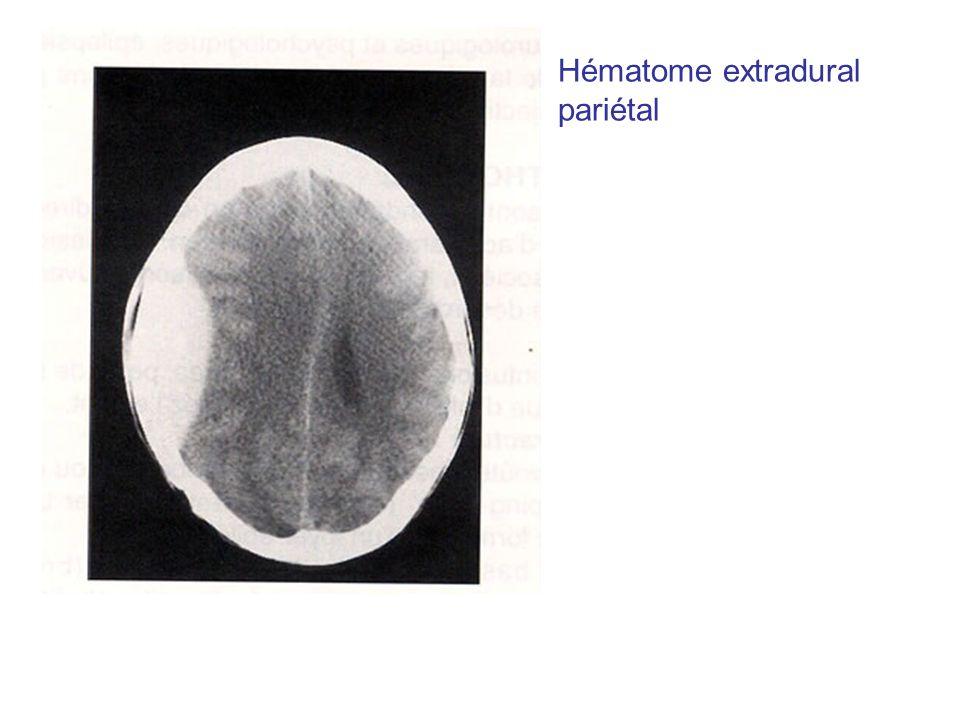 Hématome extradural pariétal