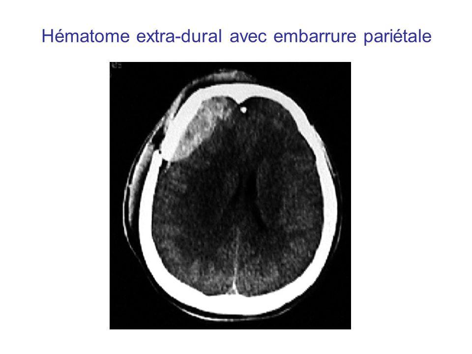 Hématome extra-dural avec embarrure pariétale