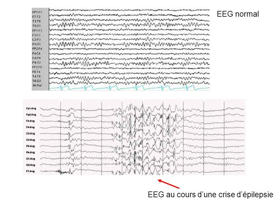EEG normal EEG au cours d'une crise d'épilepsie