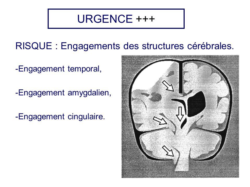 URGENCE +++ RISQUE : Engagements des structures cérébrales.