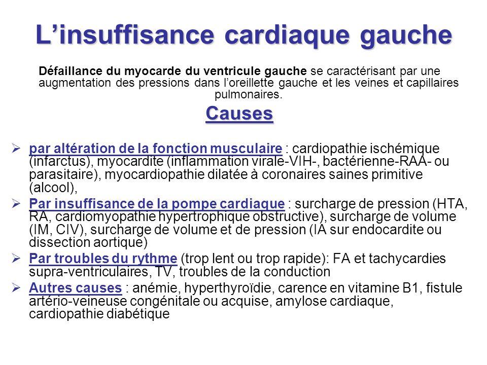 Pathologie cardiaque ischémique