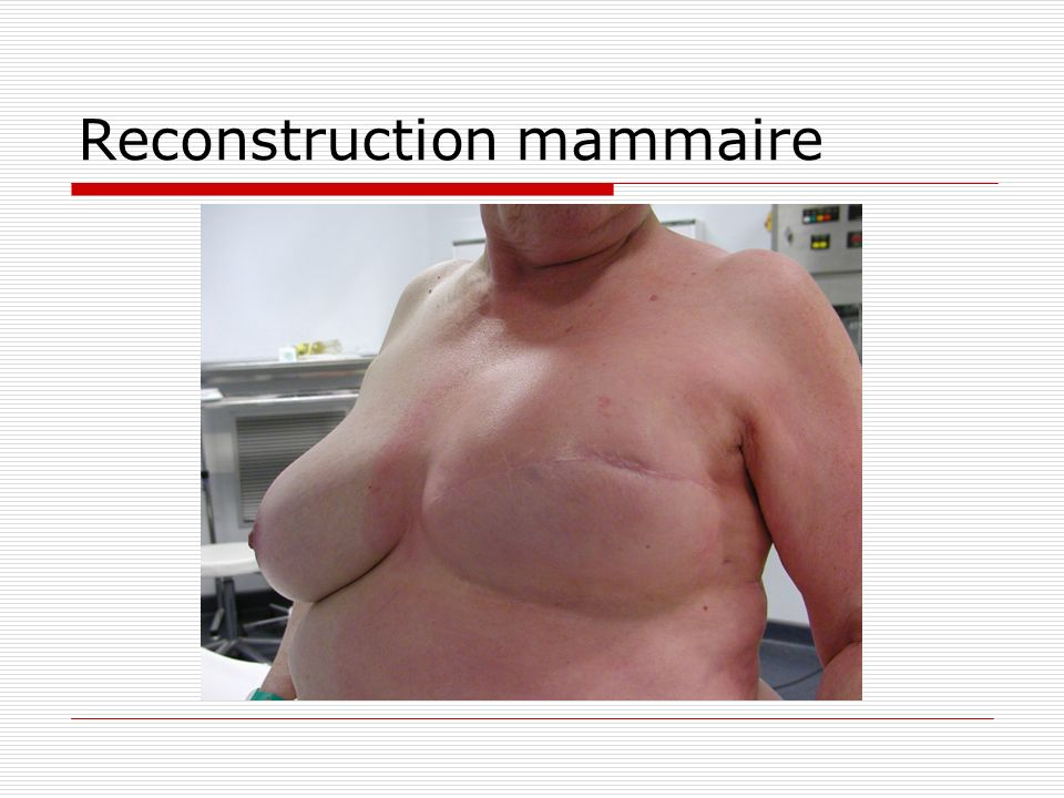 Reconstruction mammaire