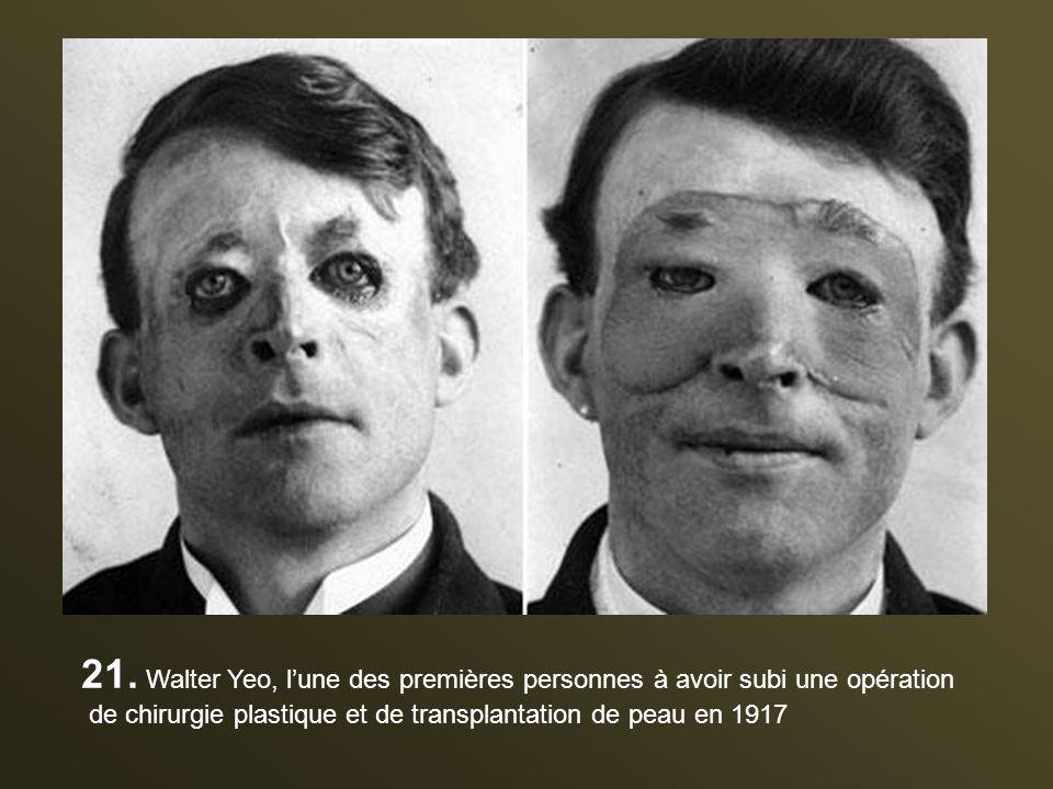 21. Walter Yeo, l'une des premières personnes à avoir subi une opération