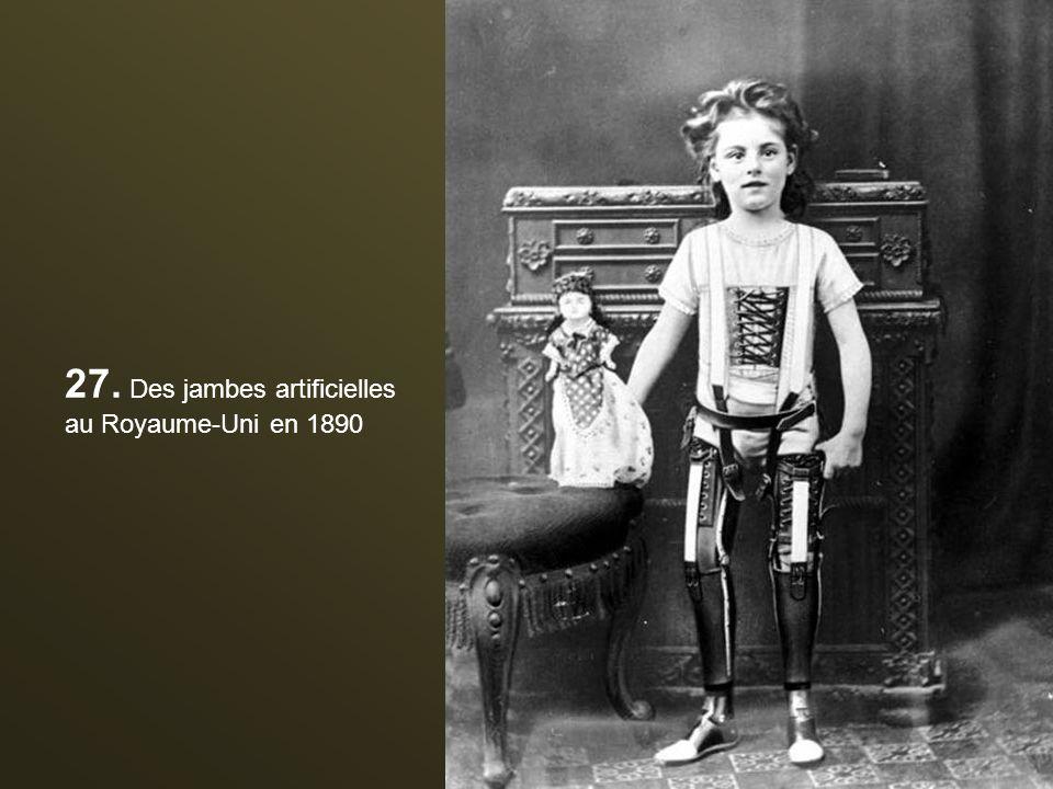 27. Des jambes artificielles