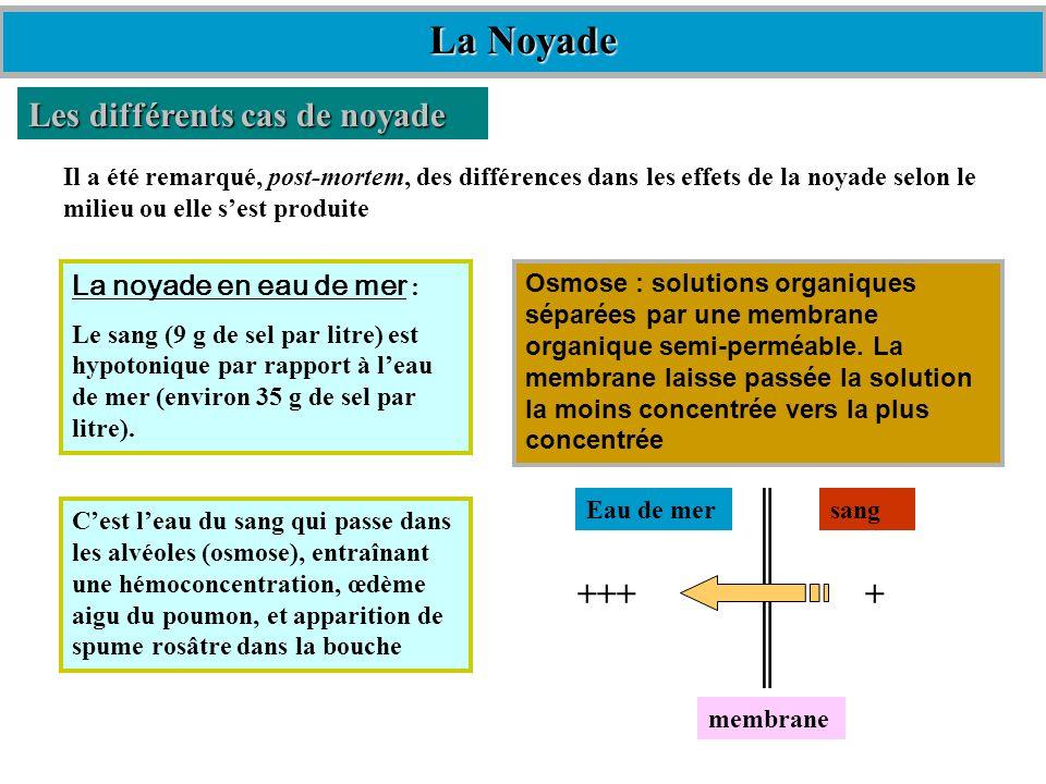 La Noyade Les différents cas de noyade +++ + La noyade en eau de mer :