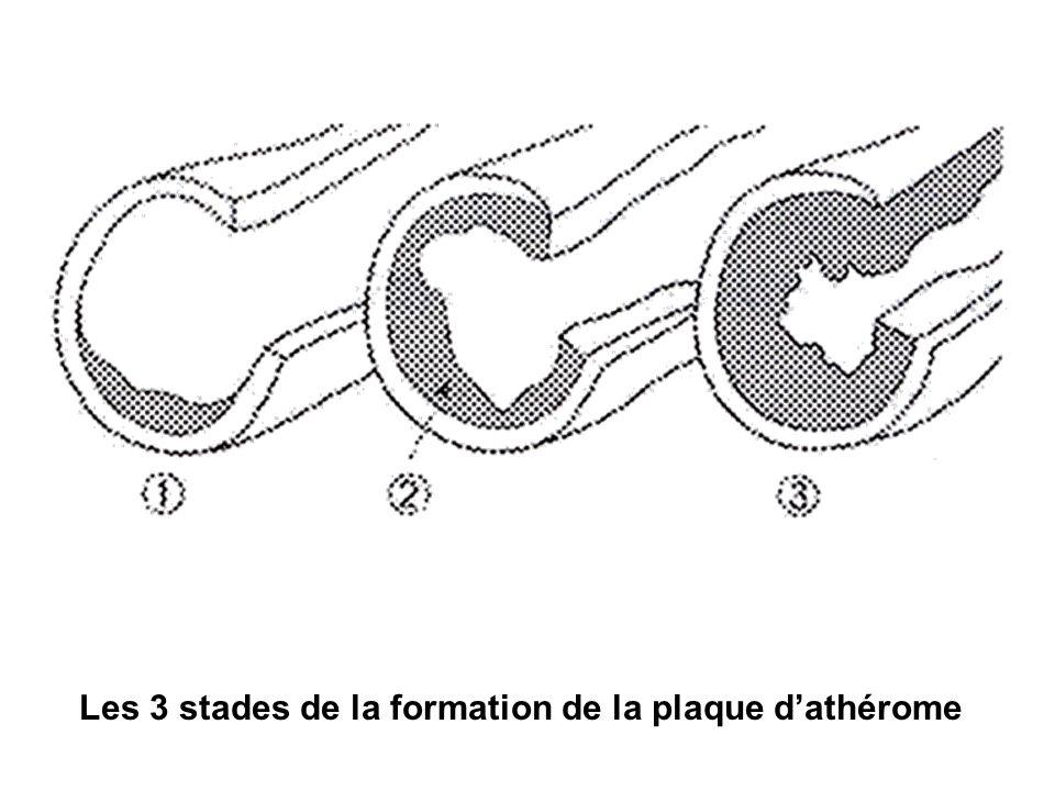 Les 3 stades de la formation de la plaque d'athérome