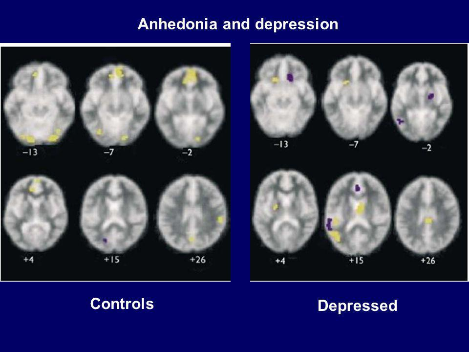 Anhedonia and depression