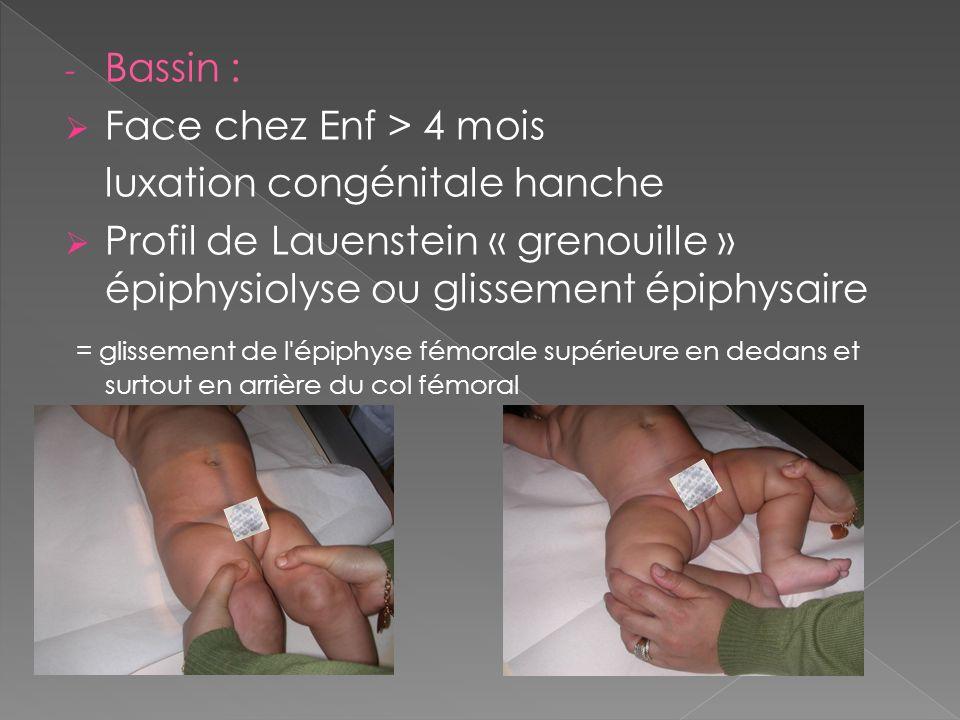 Bassin : Face chez Enf > 4 mois. luxation congénitale hanche. Profil de Lauenstein « grenouille » épiphysiolyse ou glissement épiphysaire.