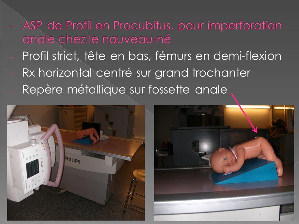 ASP de Profil en Procubitus, pour imperforation anale chez le nouveau-né