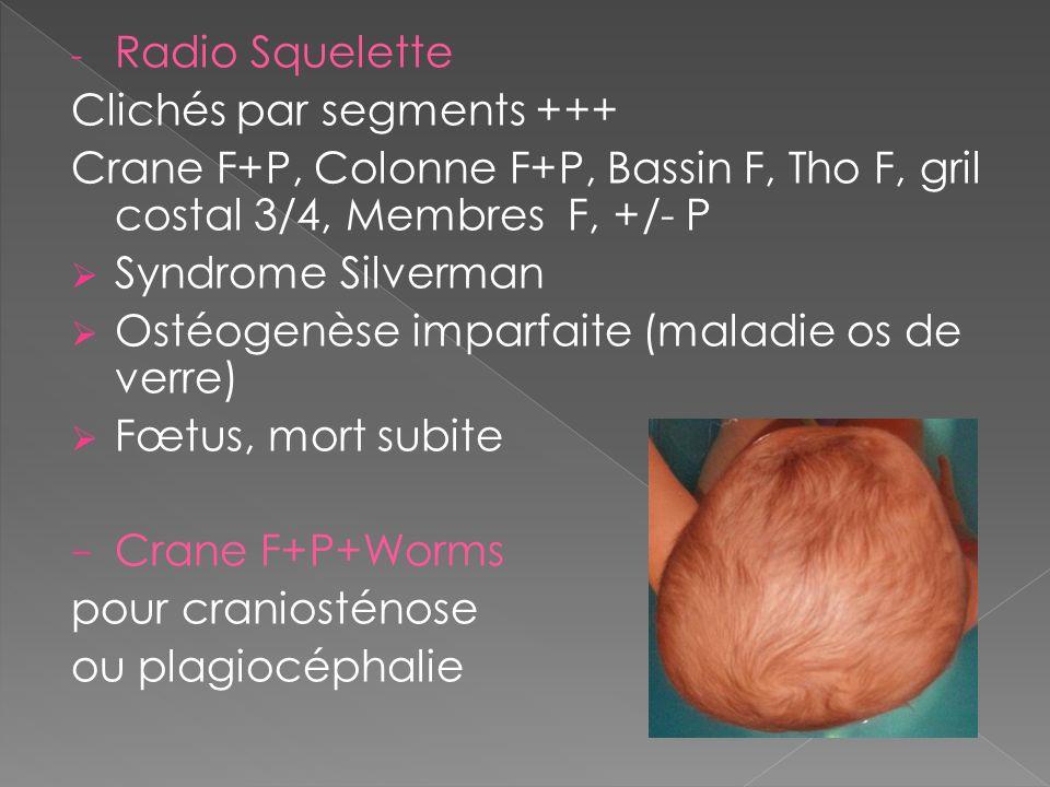 Radio Squelette Clichés par segments +++ Crane F+P, Colonne F+P, Bassin F, Tho F, gril costal 3/4, Membres F, +/- P.