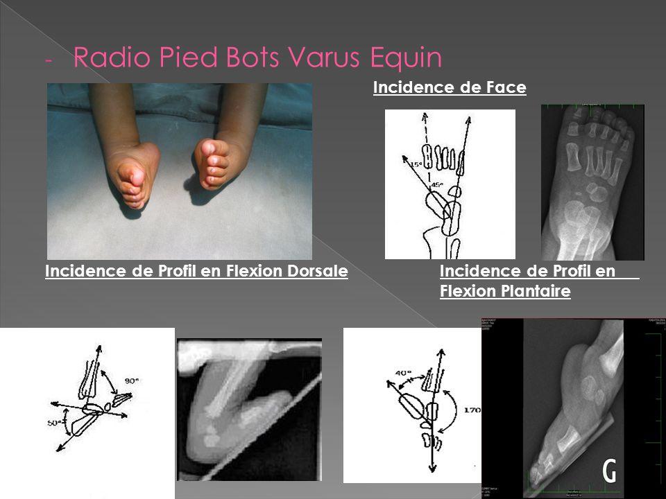 Radio Pied Bots Varus Equin
