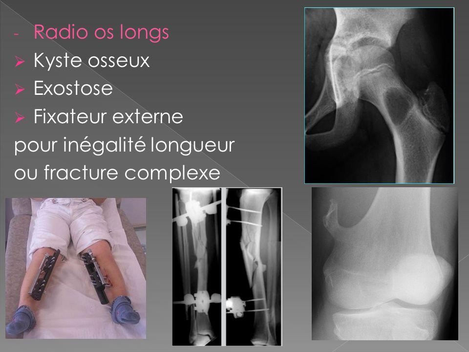 Radio os longs Kyste osseux Exostose Fixateur externe pour inégalité longueur ou fracture complexe