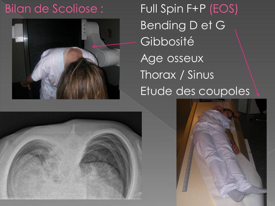 Bilan de Scoliose : Full Spin F+P (EOS) Bending D et G Gibbosité Age osseux Thorax / Sinus Etude des coupoles