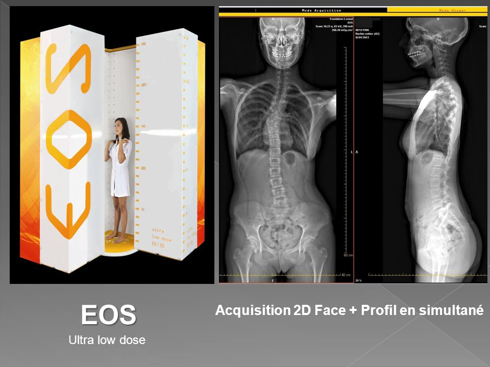EOS Acquisition 2D Face + Profil en simultané Ultra low dose