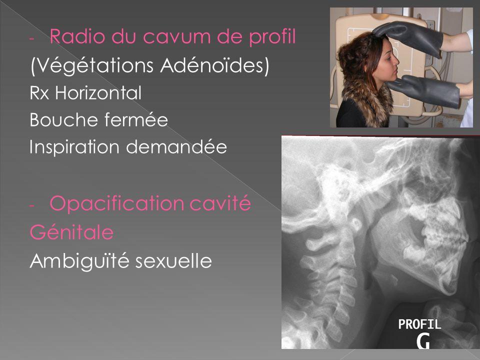 Radio du cavum de profil (Végétations Adénoïdes)