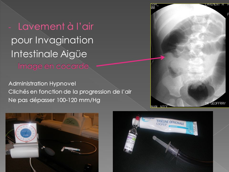 Lavement à l'air pour Invagination Intestinale Aigüe Image en cocarde