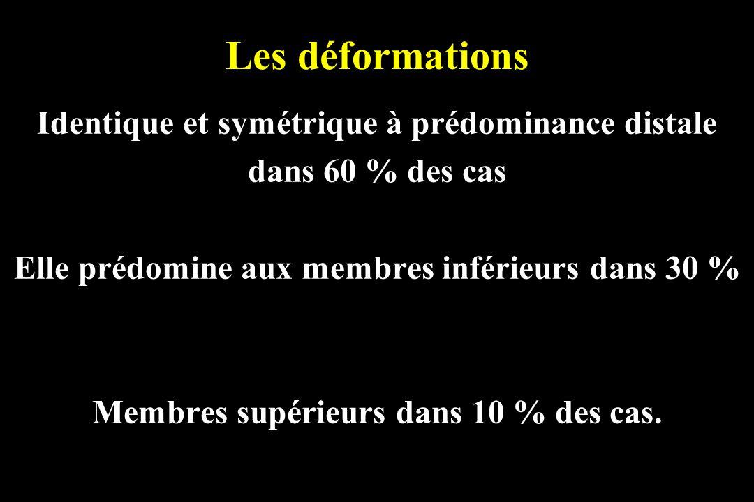 Les déformations Identique et symétrique à prédominance distale