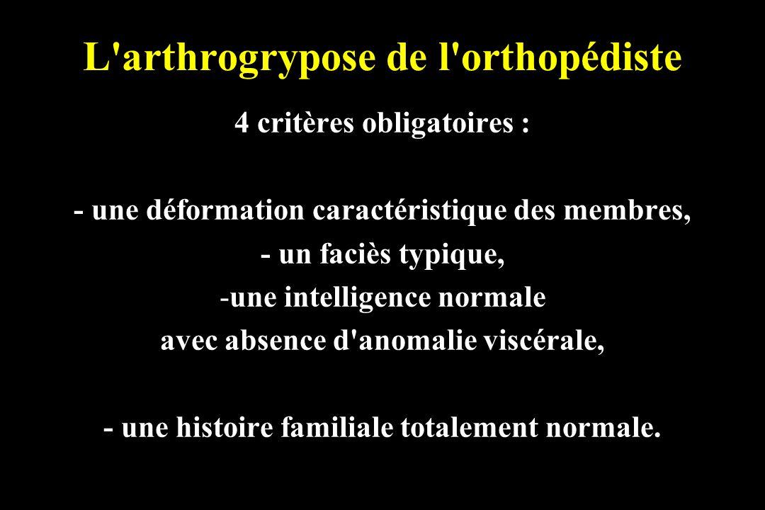 L arthrogrypose de l orthopédiste