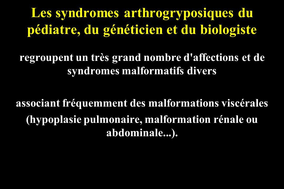 Les syndromes arthrogryposiques du pédiatre, du généticien et du biologiste