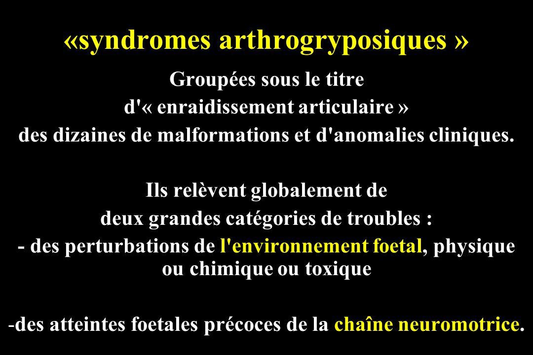 «syndromes arthrogryposiques »