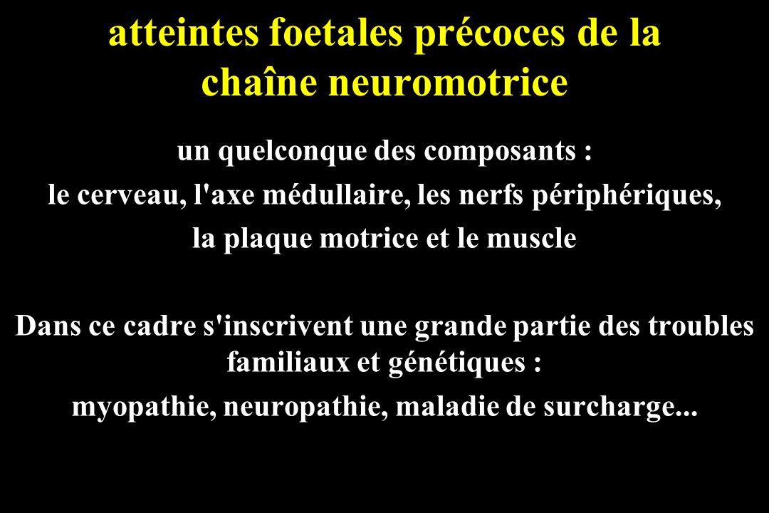atteintes foetales précoces de la chaîne neuromotrice