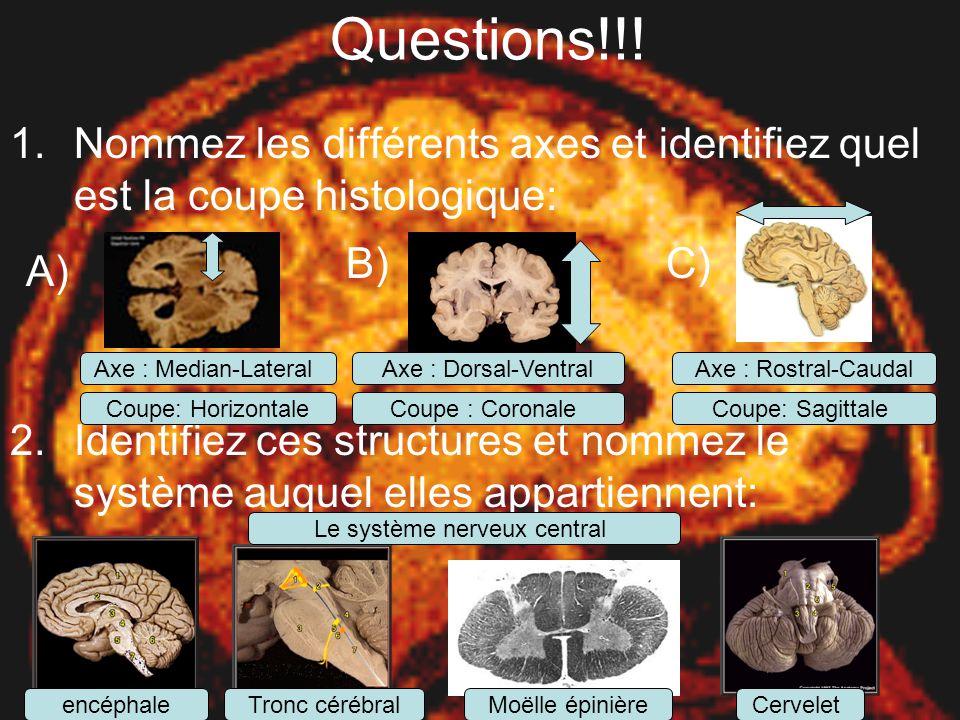 Questions!!! Nommez les différents axes et identifiez quel est la coupe histologique: