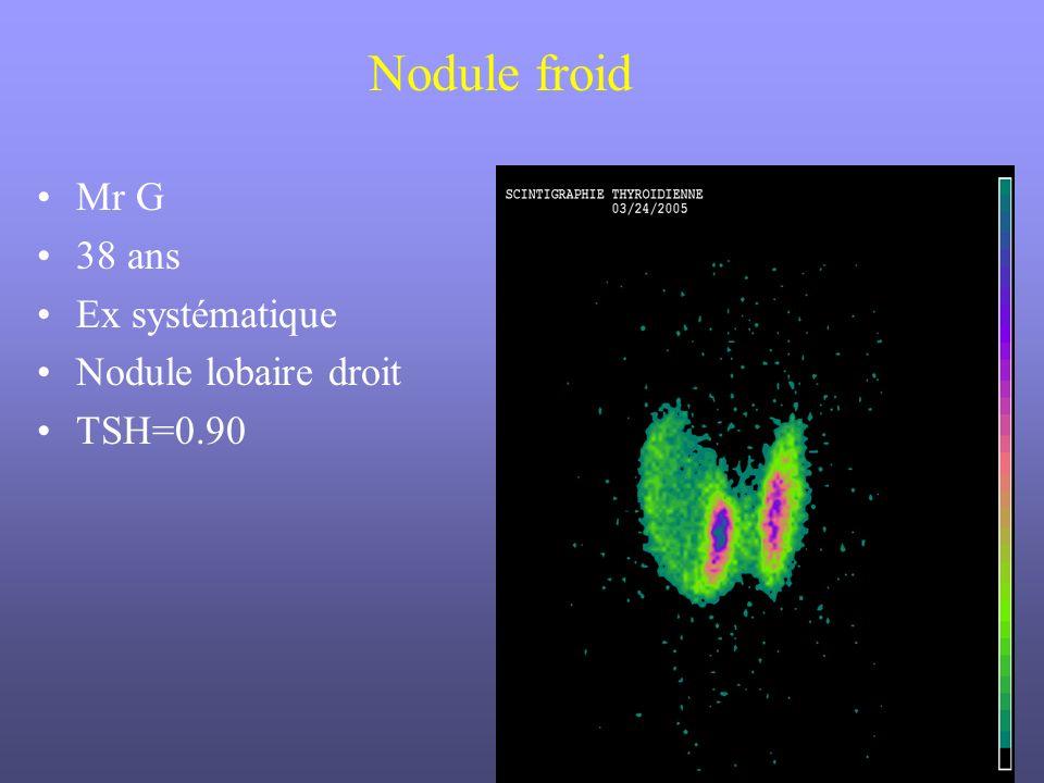 Nodule froid Mr G 38 ans Ex systématique Nodule lobaire droit TSH=0.90