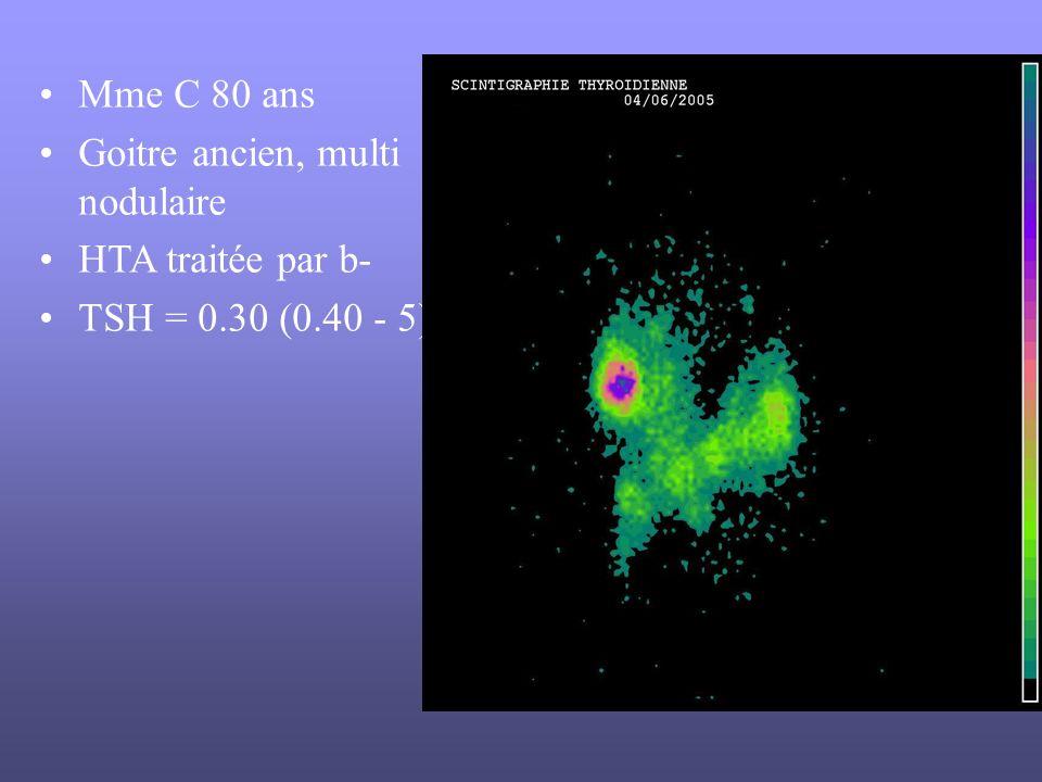 Mme C 80 ans Goitre ancien, multi nodulaire HTA traitée par b- TSH = 0.30 (0.40 - 5)