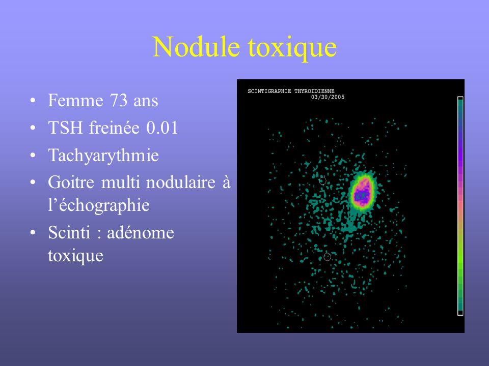 Nodule toxique Femme 73 ans TSH freinée 0.01 Tachyarythmie