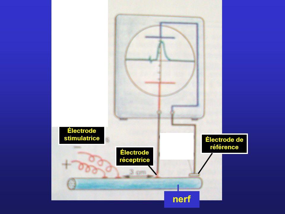 Électrode stimulatrice Électrode de référence