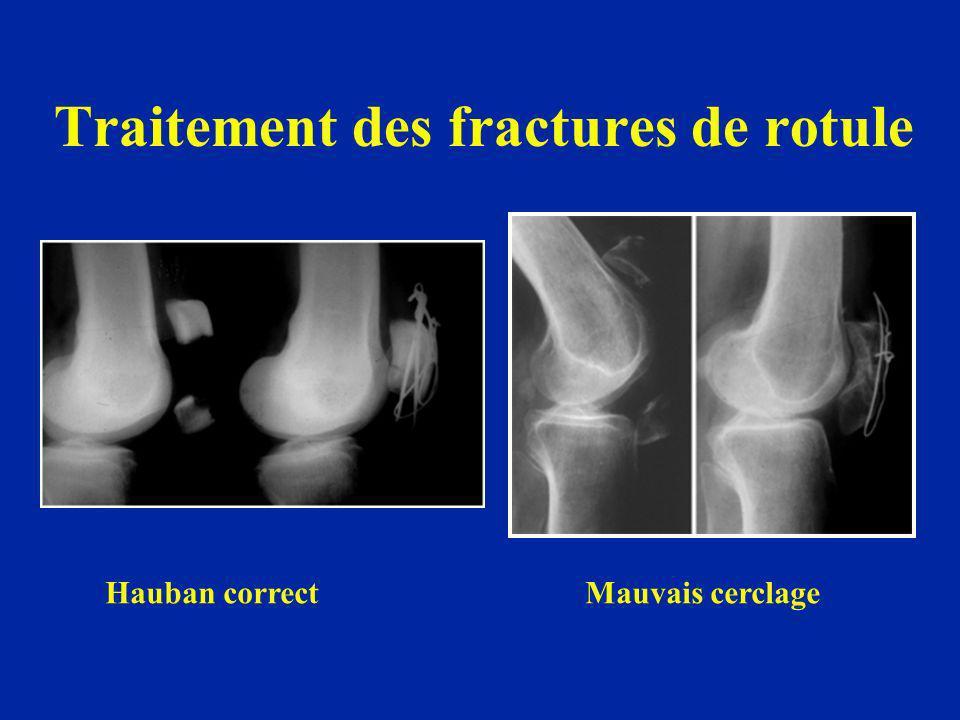 Traitement des fractures de rotule