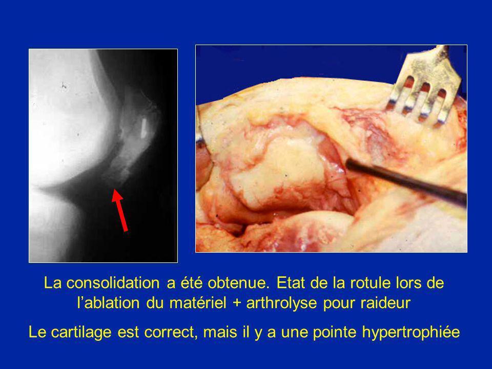 Le cartilage est correct, mais il y a une pointe hypertrophiée