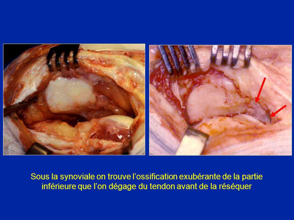 Sous la synoviale on trouve l'ossification exubérante de la partie inférieure que l'on dégage du tendon avant de la réséquer