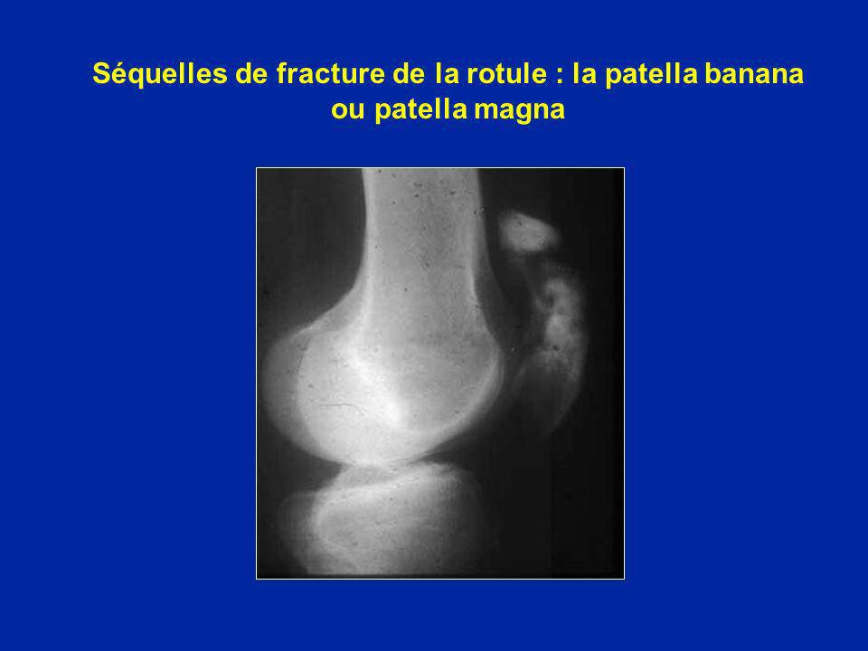 Séquelles de fracture de la rotule : la patella banana ou patella magna