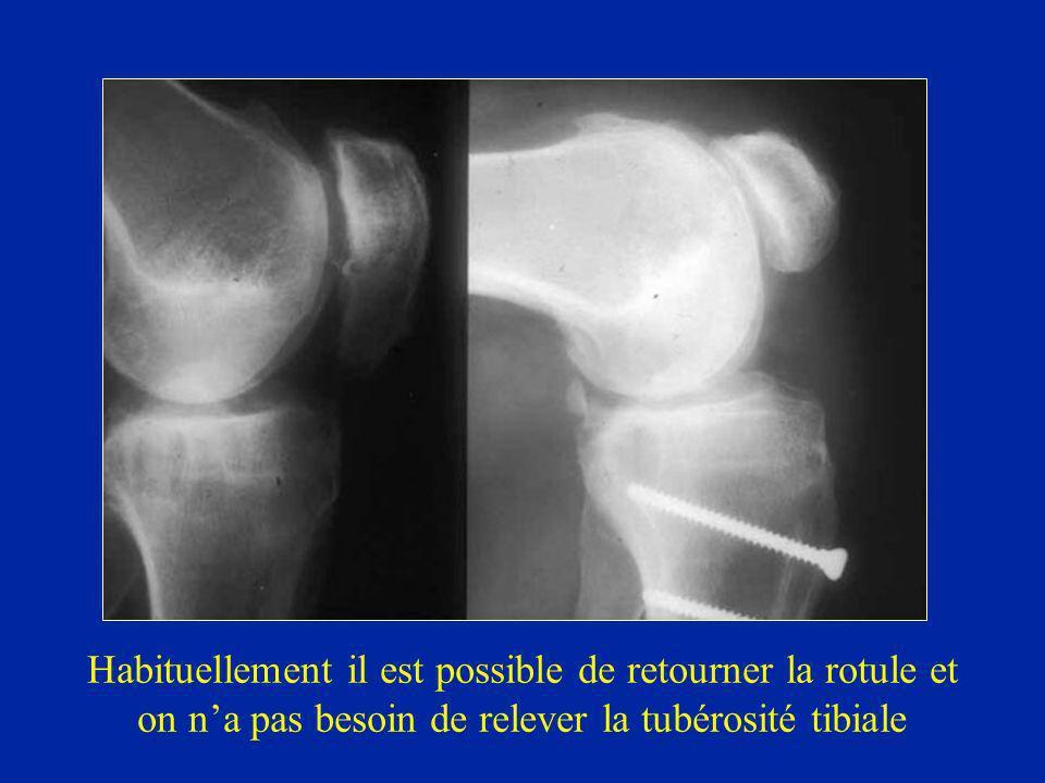 Habituellement il est possible de retourner la rotule et on n'a pas besoin de relever la tubérosité tibiale