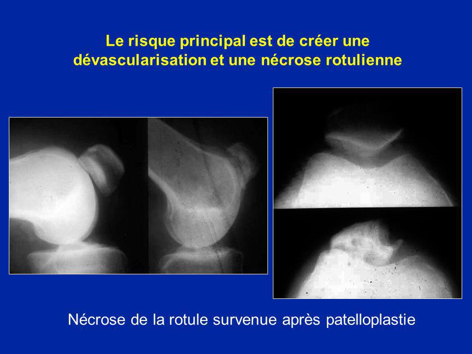 Nécrose de la rotule survenue après patelloplastie
