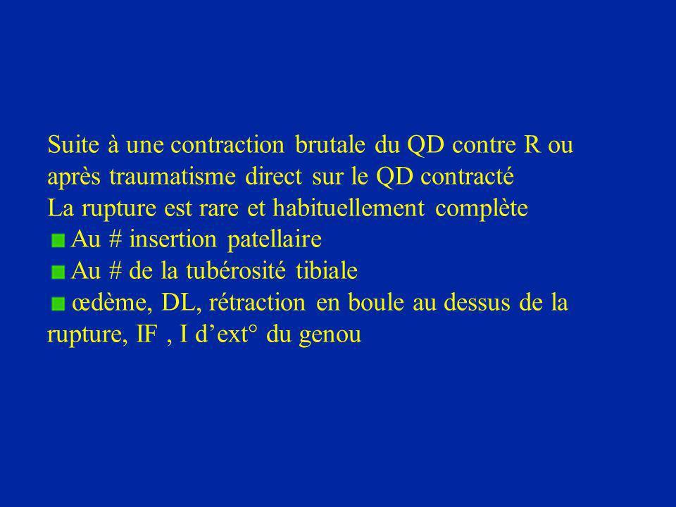 Suite à une contraction brutale du QD contre R ou après traumatisme direct sur le QD contracté