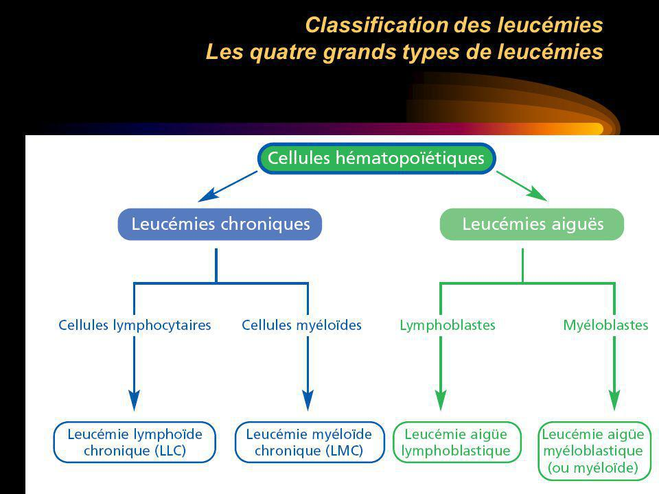 Classification des leucémies Les quatre grands types de leucémies