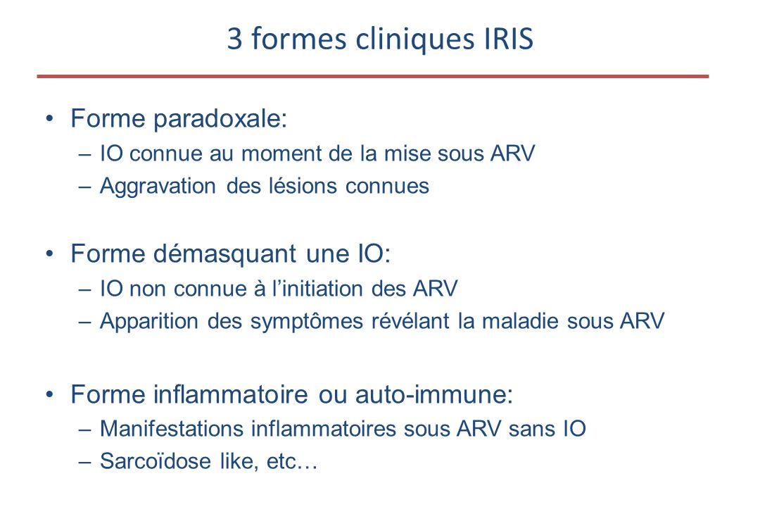 3 formes cliniques IRIS Forme paradoxale: Forme démasquant une IO: