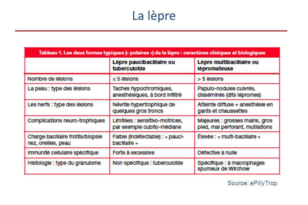 La lèpre Source: ePillyTrop