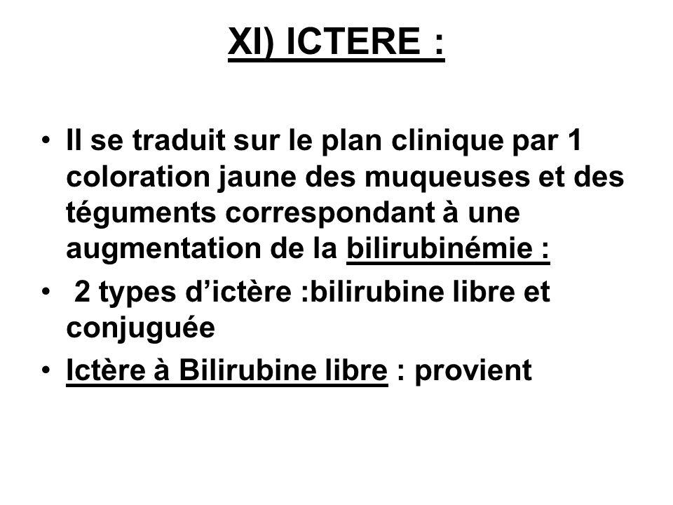 XI) ICTERE :