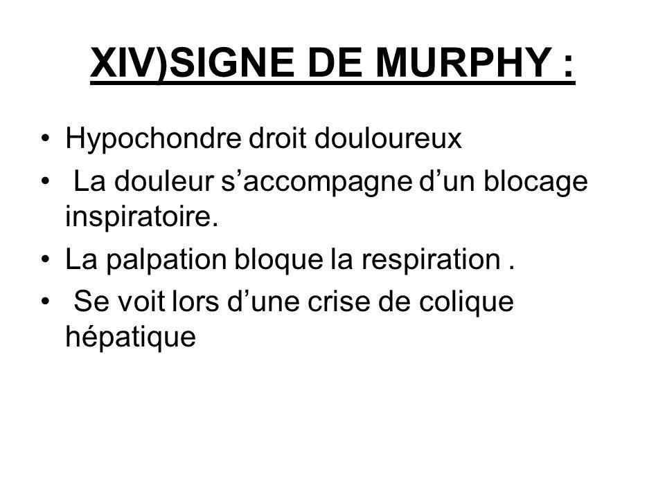 XIV)SIGNE DE MURPHY : Hypochondre droit douloureux