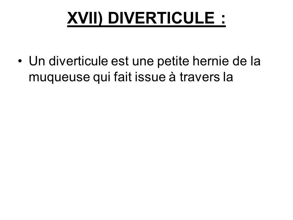 XVII) DIVERTICULE : Un diverticule est une petite hernie de la muqueuse qui fait issue à travers la