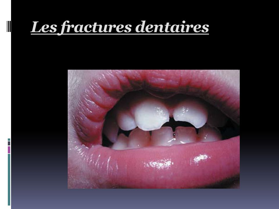 Les fractures dentaires