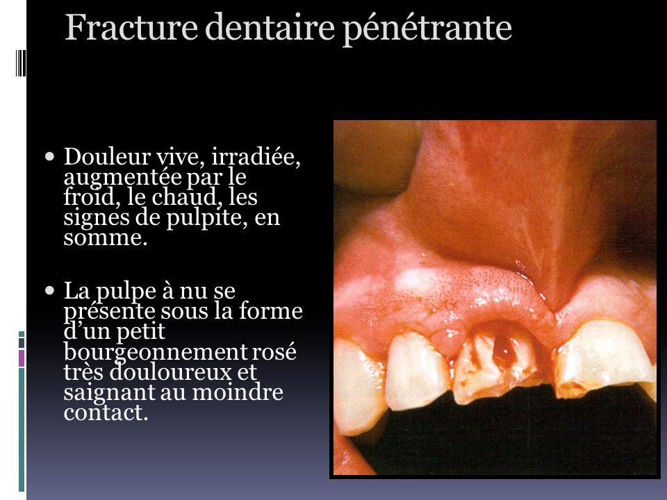 Fracture dentaire pénétrante
